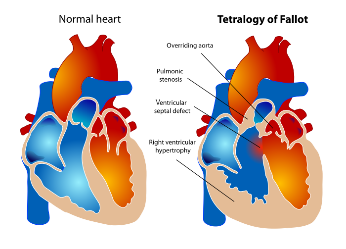 700px-tetralogy_of_fallot-svg